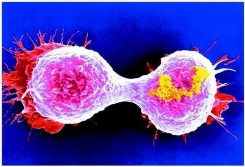 ����� �������: ��� ���� cancer_breast.JPG